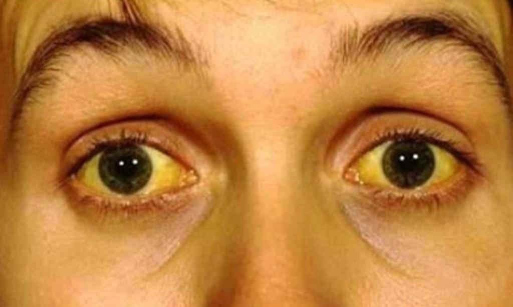 Vírus do atual surto de febre amarela tem mutação genética inédita