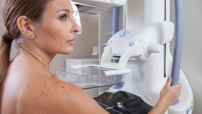 mamografia-091016.jpg