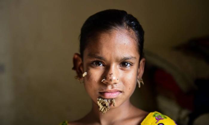 Bangladeshi-patient-Sahana-Khatun-10.jpg